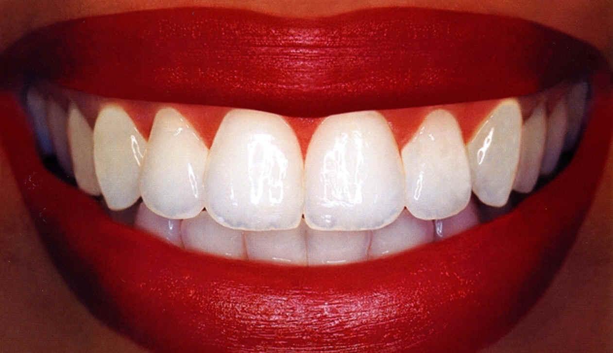 Ny sponsor; Oslo tannlegesenter!